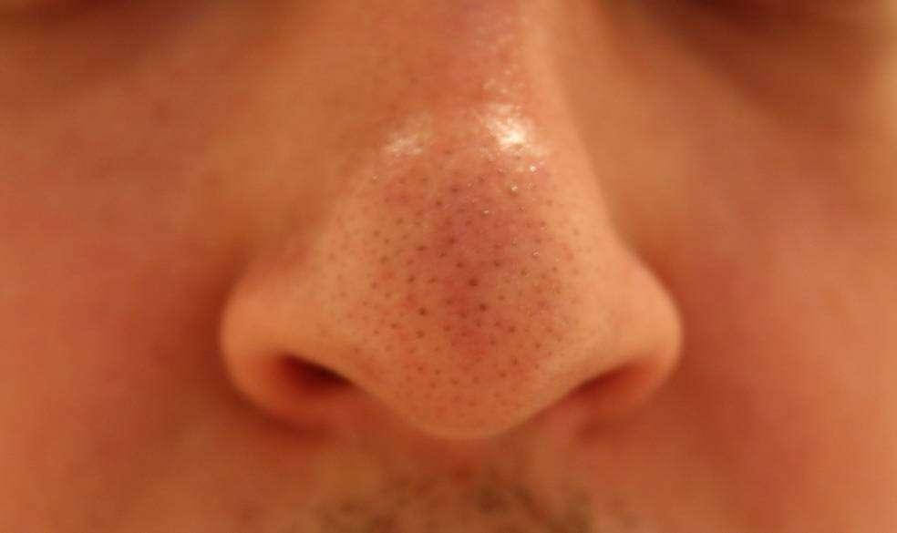 Aliexpress: Lanbena Nose. Крем маска от черных точек на лице, которая действительно работает